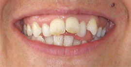 Complex Tooth Misalignment