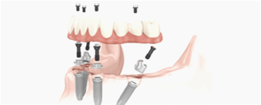 All-ON-4 Full Teeth Replacements